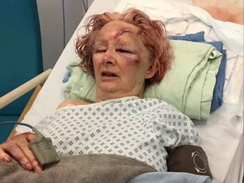 Elderly women beaten around the head with a torch by her partner