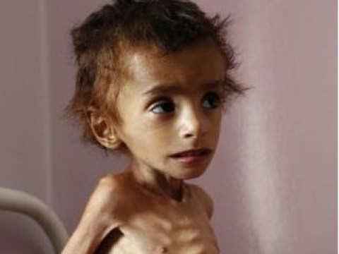 How can you help stop the 'world's worst humanitarian crisis' in Yemen?