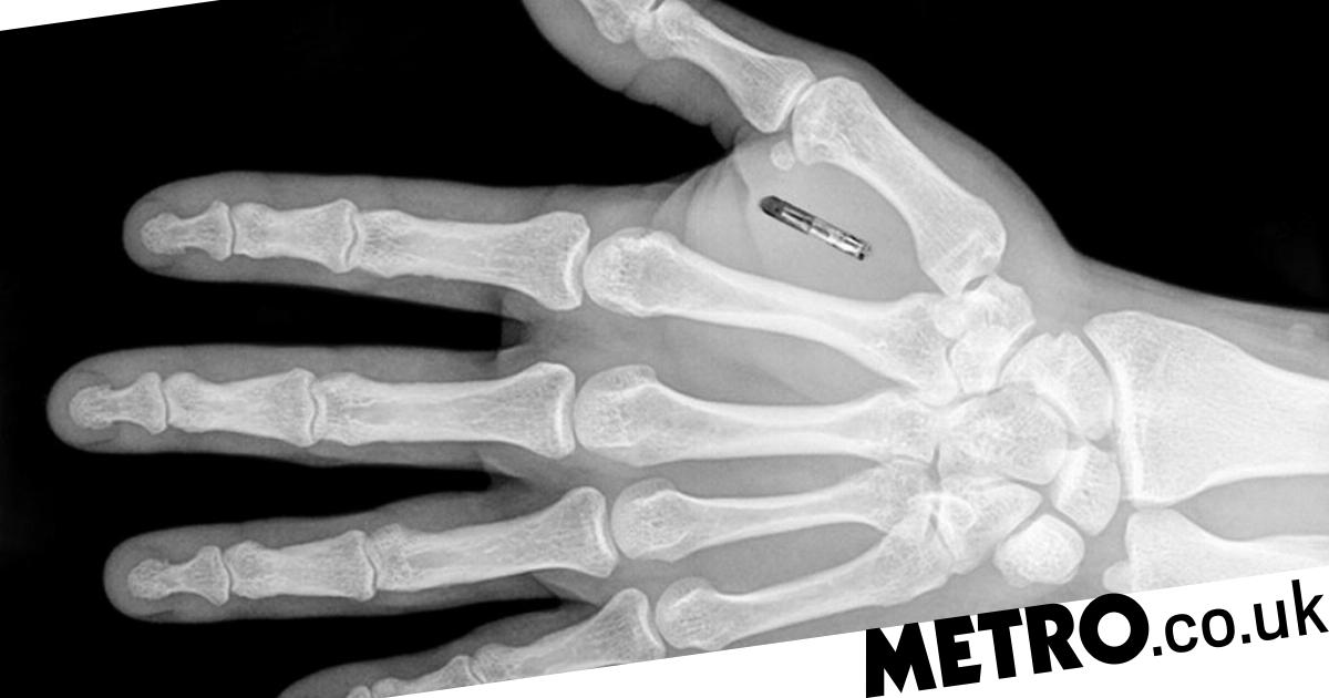 UK firms ready to microchip thousands of employees | Metro News