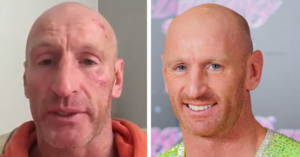Boy, 16, apologises for homophobic attack on former Wales captain Gareth Thomas