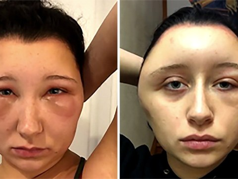 Student's head doubled in size after suffering allergic reaction to hair dye