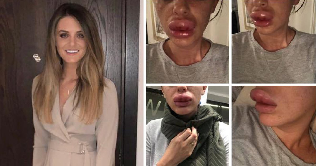 Lips ballooned from dodgy fillers at 'Botox party' in friend's kitchen