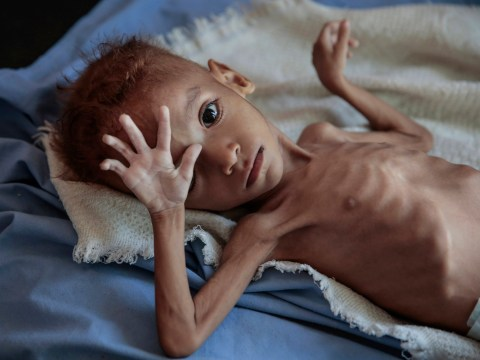 Famine has already killed 85,000 children in Yemen – many more will die soon