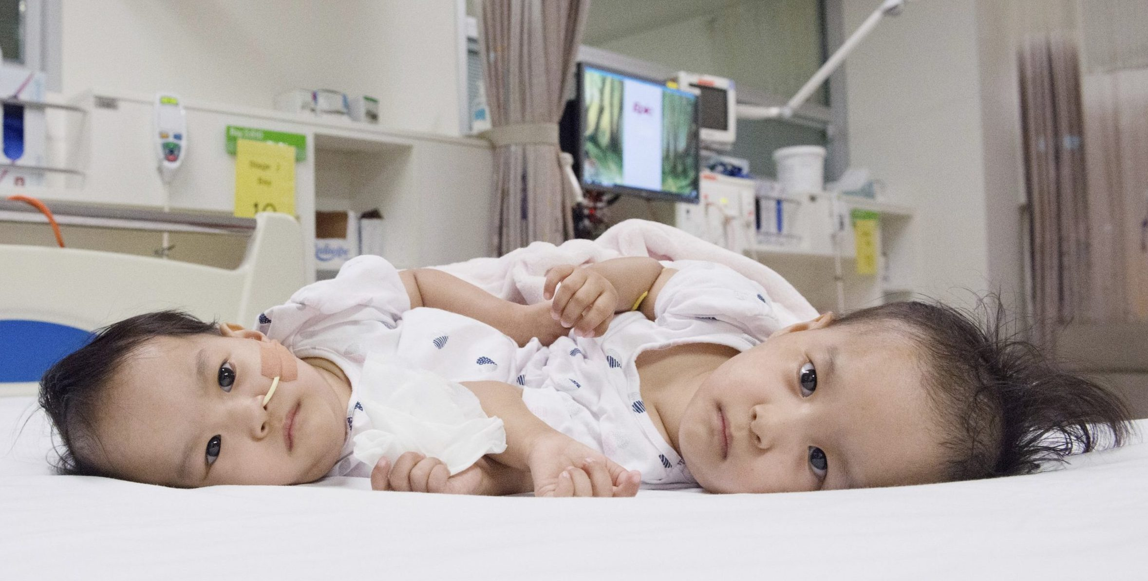 This photo provided by RCH Melbourne Creative Studio, shows the 15-month-old girls before surgery at the Royal Children's Hospital Melbourne, Australia Friday, Nov. 9, 2018. Surgeons in Australia have begun separating the conjoined twins from Bhutan in a delicate operation expected to last most of the day. (RCH Melbourne Creative Studio via AP)