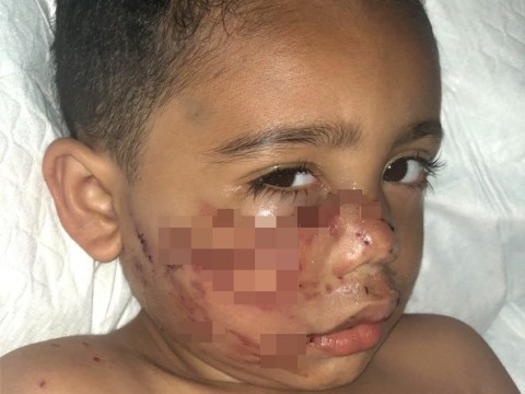 Toddler's injuries after being mauled by grandparents' pitbull