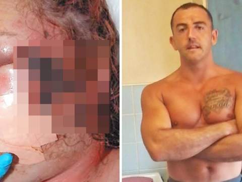 Mum left in coma after boxer boyfriend whipped and burned her with cigarettes