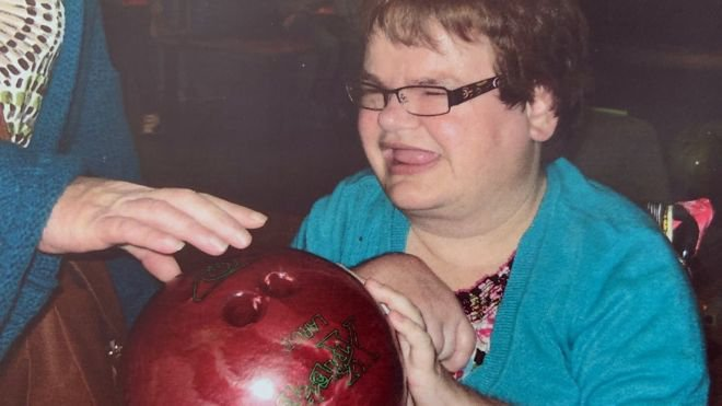 """A disabled woman died after having all her teeth removed by a dentist at an NHS trust criticised for its """"drastic"""" full extractions from other vulnerable patients. Rachel Johnston underwent the operation after it was deemed necessary because of severe tooth decay."""
