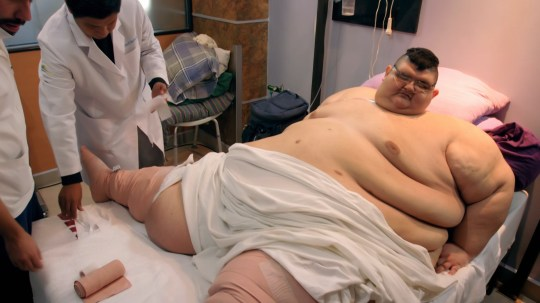 World S Fattest Man Who Weighed 93 Stone Has Life Saving Treatment After Losing 500lbs Metro News