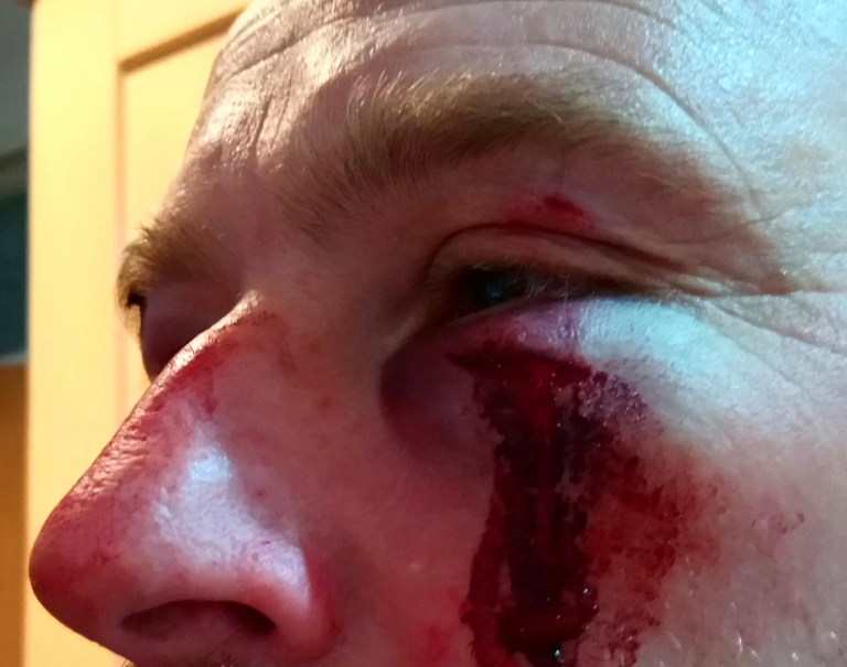 Hunt saboteurs have been attacked by both the East Kent with West Street and the Ashford Valley Tickham fox hunts this morning. A supporter of the East Kent has been arrested for GBH after a sab was hospitalised with a suspected broken eye socket. Demonstrations had taken place at the East Kent?s hunt meet at their kennels in Elham, moved there from the center of the village due to pressure from locals, and at the Ashford Valley?s meet in Tenterden. In Elham there were over 100 demonstrators, and only 40 hunt riders. Kent police had turned up in force to keep the groups apart. After the hunt had left, a group of drunken hunt supporters attacked the sabs and their vehicle as they tried to leave (all attackers had been drinking with the hunt at the kennels earlier, and had made threats of violence to demonstrators). During the attack, a sab was thrown in front of a passing car which was deliberately swerved at him, and then punched & kicked repeatedly by two or more men, causing significant injuries to his face.