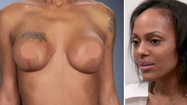 Botched surgeons resort to leeches to save woman's nipples