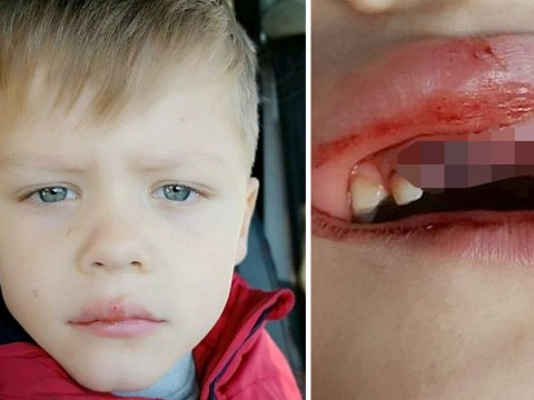 Boy, 6, has teeth knocked out by hammer in school 'forest lesson'