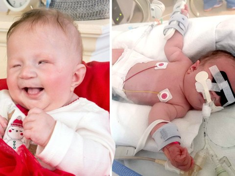 Baby born blind has 'same eyes as a cat' but can't stop smiling
