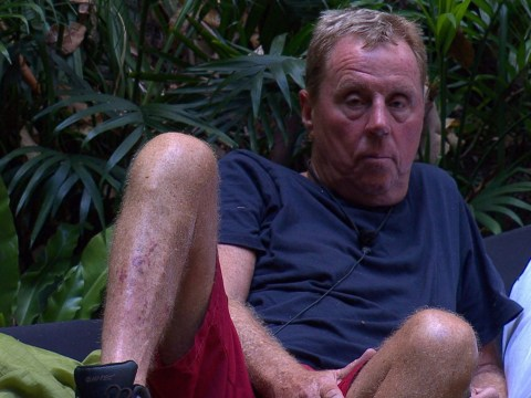 Harry Redknapp, 71, is 'raising health concerns by refusing to eat' just days before I'm A Celeb final