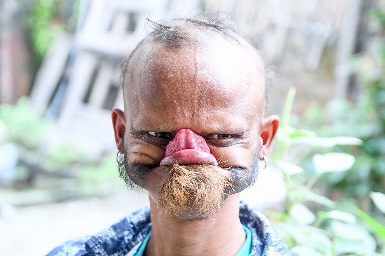 Pic From Caters News - (Pictured: School Bus Driver, Yagya Bahadur Katuwal, 35, from Urlabari, Nepal, shows his amazing talent of licking his own forehead. Pic taken 17/11/2018) - While most people can barely reach their nose with their tongue, this man can actually lick his own forehead- but he tries not to do it often because he scares the kids. Yagya Bahadur Katuwal,35, from Urlabari, Nepal, works as staff on a local school bus and his amazing ability has made him a celebrity in his country after his friend posted a video of him on social media. Yagya claims he has the worlds longest tongue and is the only person in the world that can lick his forehead- but has been warned not to show his ability at work , as the students get scared. SEE CATERS COPY