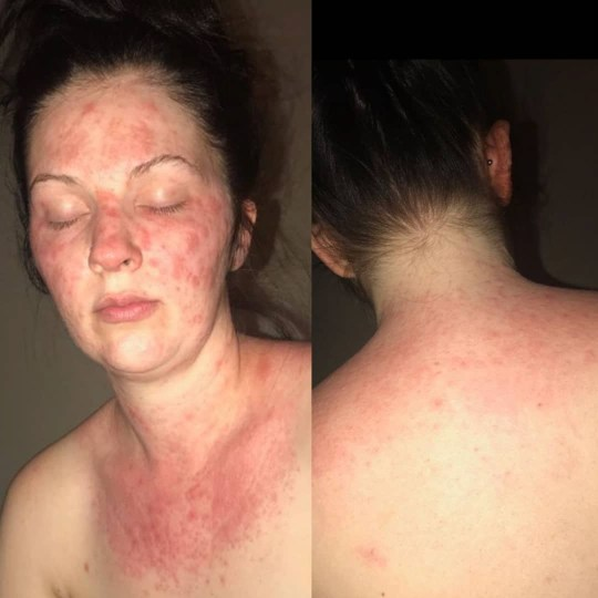 Woman who had severe reaction to hair dye can never dye her