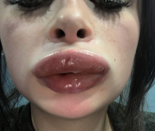 Nurse's lips doubled in size and cracked after having