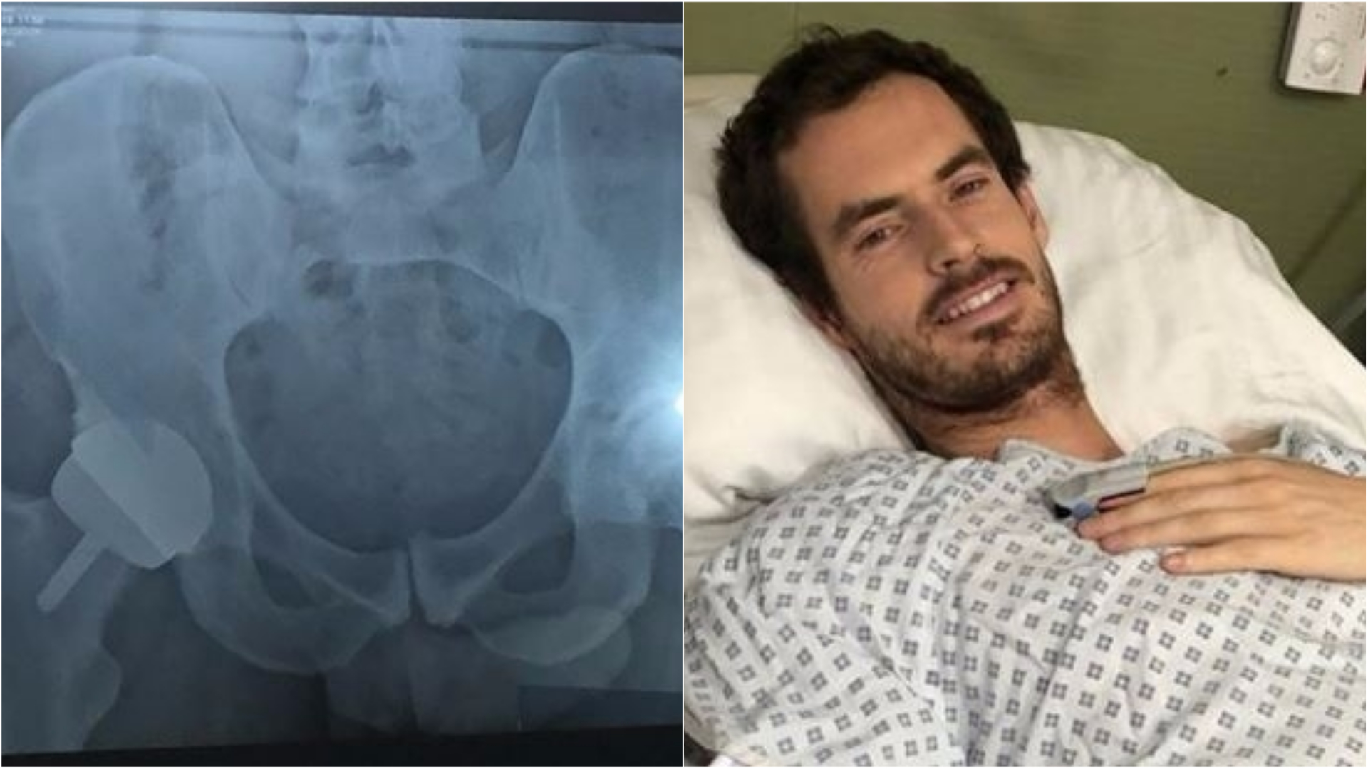 Andy Murray undergoes hip surgery in bid to prolong tennis career