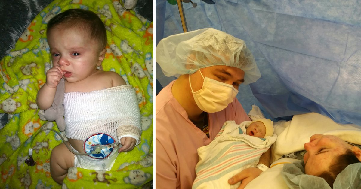 Baby's bones were so fragile he broke both arms and legs in the womb