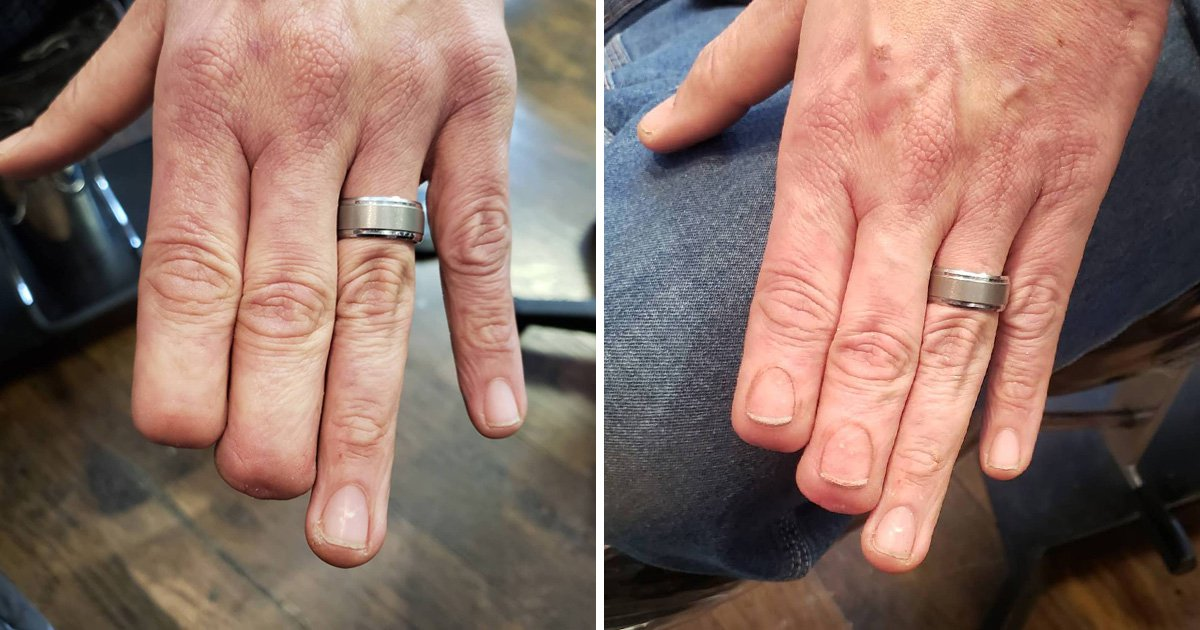 Man who had his fingertips amputated gets new nails tattooed on