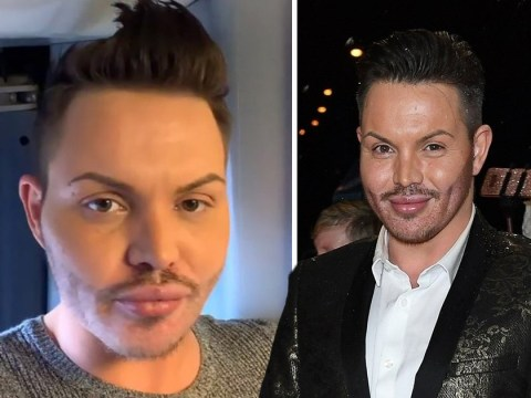 Towie's Bobby Norris blasts homophobic abuse and surgery rumours after being called a 'vile faggot'