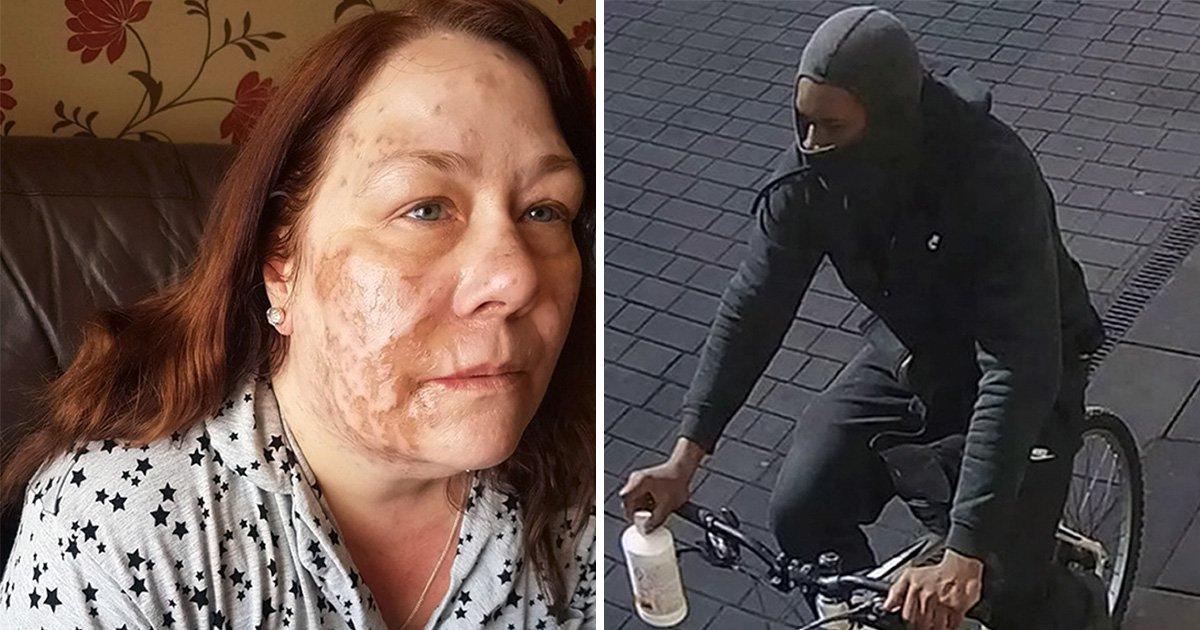 Acid victim's family say police 'let attacker slip through the net'