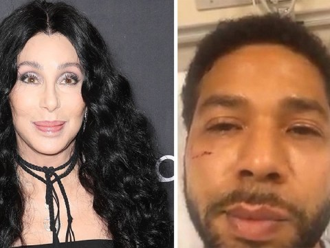 Cher reacts to Jussie Smollett 'racist and homophobic' attack: 'White only is not right'