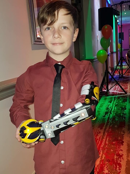 METRO GRAB - taken from the Facebook of Callum Miller with permission Dad prints bionic arm for his son https://www.facebook.com/callum.miller.108/photos Credit: Callum Miller