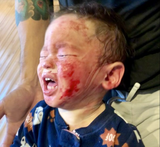 PICS BY KRISTI CHUN / CATERS NEWS - (PICTURED: If he wasnt careful he woudl scratch his skin until it bled) - A toddler is overcoming a horrific reaction to steroid creams that left him screaming in agony, oozing and scabbing from head to toe. Colby Chun, now 20-months-old, has been battling the withdrawal symptoms of using topical steroid based creams, oral treatments and wet wraps for over a year. Parents Kristi and Matt, 36 and 37, were prescribed the varying medications over two months to initially treat a small patch of eczema on his ear. But over time, they noticed while the dry skin would initially clear up it would come back in other areas and with a larger surface area. - SEE CATERS COPY