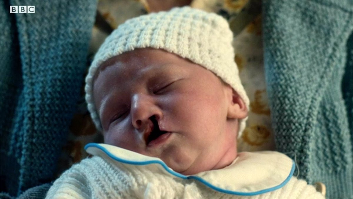 Call The Midwife fans left in tears over story of baby with cleft lip and palate