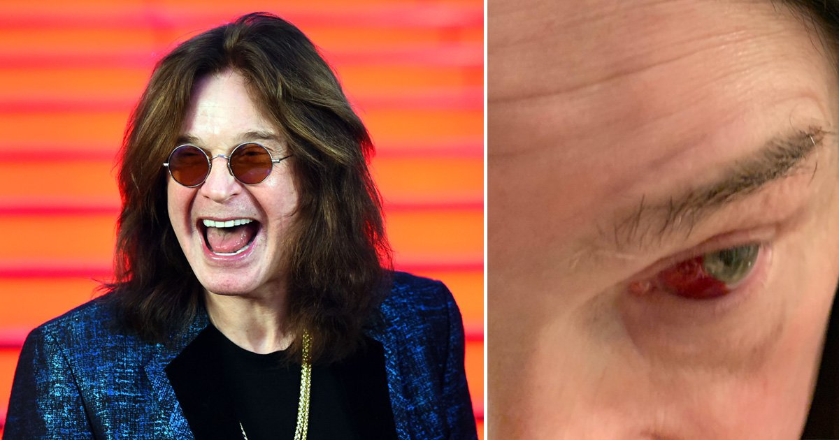 Ozzy Osbourne forced to cancel gig and shares gory eye photo to explain why
