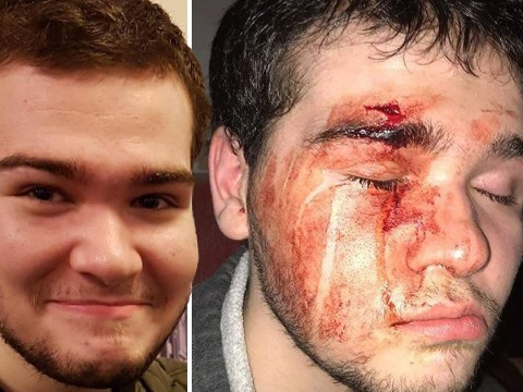 Autistic teenager 'feels like punch bag' after being beaten up twice in a month