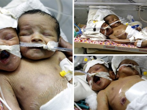 Twins born with one body desperately need to leave Yemen for treatment