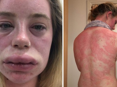 Mystery condition makes woman's lips double in size
