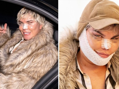 Human Ken Doll Rodrigo Alves 'so happy' with more surgery as he returns from Iran