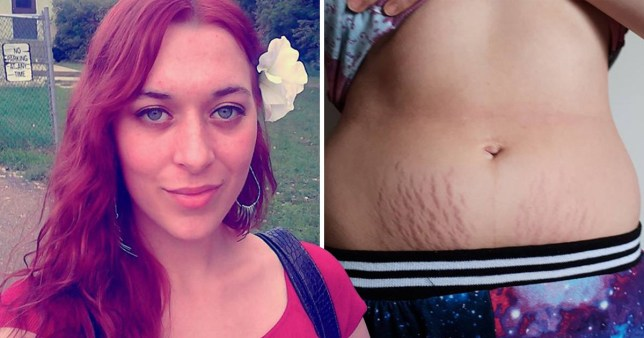 d5ca21dc1df4c Mum says breast milk helped fade her stretch marks