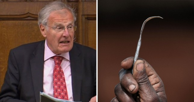 MP Christopher Chope on the right. On the left, a hand holding a blade used for FGM