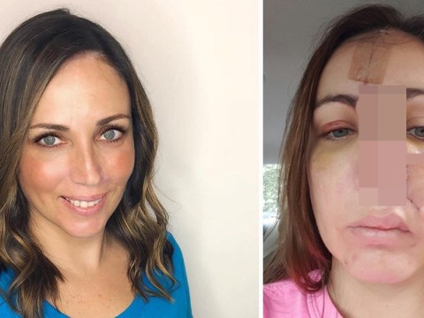 Woman's nose rebuilt using forehead after spot turned out to be cancer