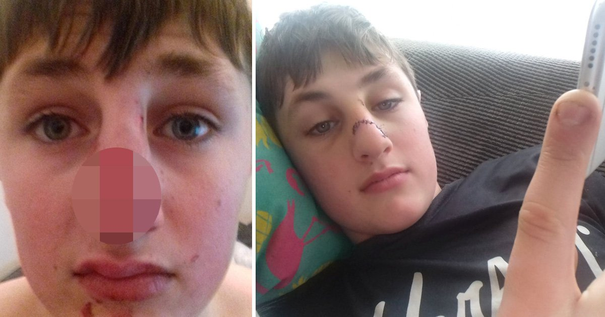 Boy's nose broken after being hit in the face with a log in 'unprovoked attack'