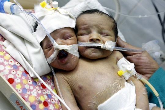 epa07342687 A two-headed newborn, Abdul-Khaliq (R) and Abdul-Rahim (L), lies inside an incubator at the neonatal intensive care unit of Al-Thawra hospital, in Sana'a, Yemen, 03 February 2019. A Yemeni woman has given birth to twins conjoined from the neck down (a condition known as parapagus dicephalus that have low survival rate) whose rare and complicated medical predicament requires treatment abroad, doctors in charge of the case at a Sana'a hospital said. According to doctors, the twins, born to a Yemeni couple who live in a rural community on the outskirts of Yemen's capital, are in deteriorating health. The father of the twins Akram Ali Ahmed, 20, said that he does not want them to be separated and nor for one of them to die for the sake of the other. Faisal al-Babli, head of the children's department at Al-Thawra hospital, said that the twins are fairly stable so far, but the hospital is looking for funding and assistance to move the children outside of Yemen for treatment as the medical capabilities in Yemen were very poor, especially in light of the ongoing war. EPA/YAHYA ARHAB