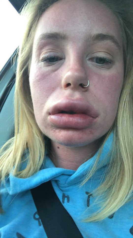 Mystery condition makes woman's lips double in size | Metro News
