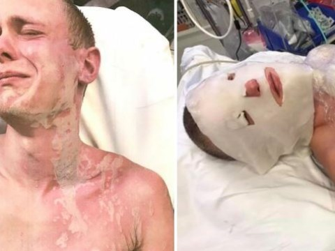 Man, 25, suffers horrific burns after 'father figure' pours drain cleaner on him