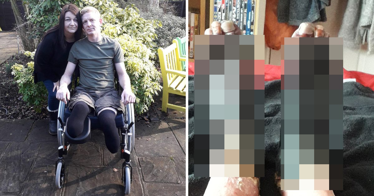 Postman has both his feet amputated 'after getting the flu'