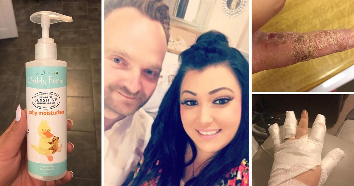 Hairdresser thought she would have to quit her job because water made her skin 'burn'