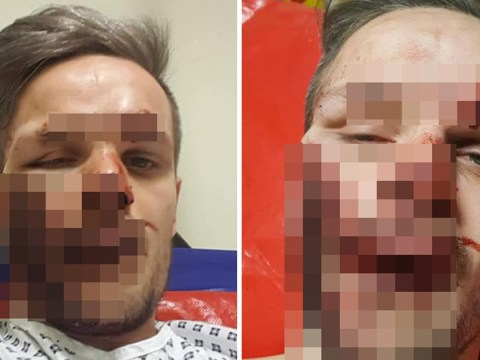 Dad left with 'life-changing' facial injuries after having teeth knocked out in hit and run