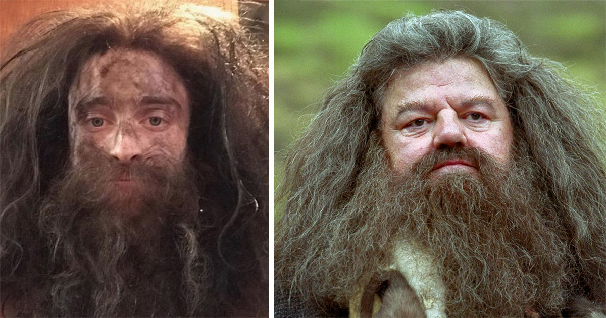 Daniel Radcliffe looks more like Hagrid than Harry Potter as he films new series Miracle Workers