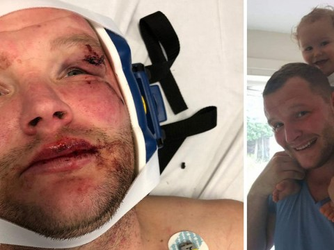 Dad-of-two beaten so badly at pub he hallucinates his attackers are watching him