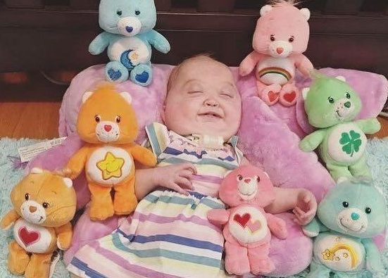Charlotte pictured smiling surrounded by her toys. MEET THE inspiring toddler with a RARE connective tissue disorder that is characterised by facial deformities who has defied doctors by FIGHTING the condition with the support of her siblings who see her as BEAUTIFUL. Stay-at-home-mum-of-three, Tammy Patt (31), from Wisconsin, USA, was 20 weeks pregnant with Charlotte (2) in November 2016, when she was told by doctors that her growing baby had several abnormalities, but they couldn???t specify what, even after going through genetic testing. From that point until Charlotte was born, Tammy, who also has two other children, Novella (5) and Wyatt (3), was referred to specialists who monitored her pregnancy and the abnormalities on an ultrasound, fetal MRI and more but none of them could reveal Charlotte???s diagnosis. Charlotte was showing growth restriction with small head measurements, small facial features, short femur bones, small stomach and abnormal shapes in both her feet, while Tammy???s uterus contained a large amount of excess amniotic fluid. At the end of February 2017, Charlotte was born at 35 weeks, she did not cry when she was delivered and came out very floppy. She was resuscitated and required life support and just four hours after she was born, she underwent a tracheotomy, an incision in the windpipe made to relieve an obstruction to breathing. In March 2017, while still in the neonatal intensive care unit and after numerous tests, the doctors diagnosed Charlotte with Shprintzen-Goldberg Syndrome (SGS), an extremely rare condition characterised by craniofacial, skeletal and cardiovascular deformities. Only 50 people worldwide have been recorded with this condition. Tammy and her husband, Dustin, were relieved at finding out what was wrong with their daughter, but there were still many unanswered questions. Today, after a total of 10 surgeries and many doctor consults, Charlotte is now labelled a ???miracle??? for fighting for her life despite doctors ne