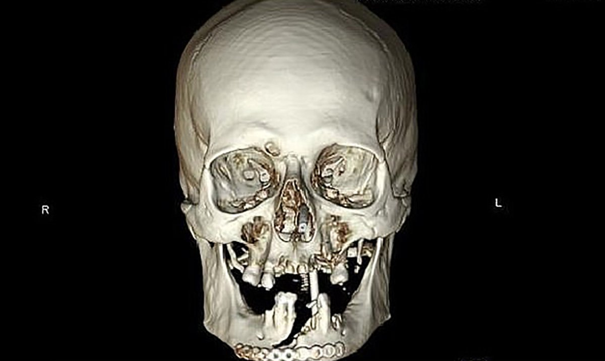Granddad's face rebuilt after slicing it in half with chainsaw