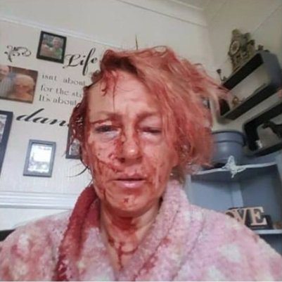 Relatives say Robert Goodwin left Nathan Bates' mum, Tania Morris, looking like this