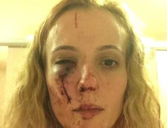 - Picture of Anca Si Piticii, 34 after she was beaten up TRIANGLE NEWS 0203 176 5581 // contact@trianglenews.co.uk A MUM-of-two was beaten up by a gang of teenage yobs because they thought she was Polish. Anca Si Piticii was punched to the ground and suffered severe facial injuries in the racially-motivated attack. She was standing on the driveway of her home removing items from her car boot when the teens struck on Friday night. *TRIANGLE NEWS DOES NOT CLAIM ANY COPYRIGHT OR LICENSE IN THE ATTACHED MATERIAL. ANY DOWNLOADING FEES CHARGED BY TRIANGLE NEWS ARE FOR TRIANGLE NEWS SERVICES ONLY, AND DO NOT, NOR ARE THEY INTENDED TO, CONVEY TO THE USER ANY COPYRIGHT OR LICENSE IN THE MATERIAL. BY PUBLISHING THIS MATERIAL , THE USER EXPRESSLY AGREES TO INDEMNIFY AND TO HOLD TRIANGLE NEWS HARMLESS FROM ANY CLAIMS, DEMANDS, OR CAUSES OF ACTION ARISING OUT OF OR CONNECTED IN ANY WAY WITH USER'S PUBLICATION OF THE MATERIAL*